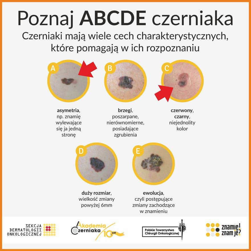 Kamienna Góra: ABC czerniaka