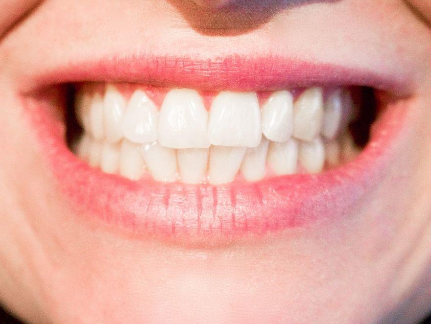 Kraj: Czerń jest nową bielą, czyli jaka pasta najlepiej odświeży uśmiech